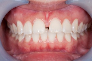 Health conditions linked to gum disease