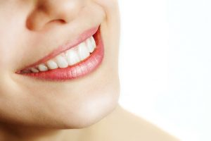 mission viejo smile makeover