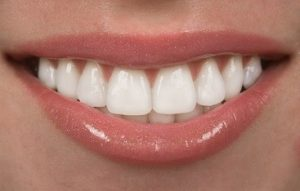 Mission Viejo Teeth Whitening Results – Dr. Milner DDS