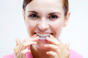 Mission Viejo patient using at-home teeth whitening trays