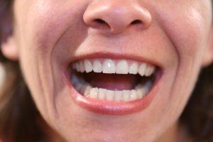 Mission Viejo Dental Bridges Patient