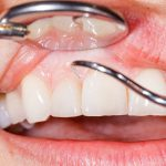 Orthodontic Treatment Mission Viejo, CA