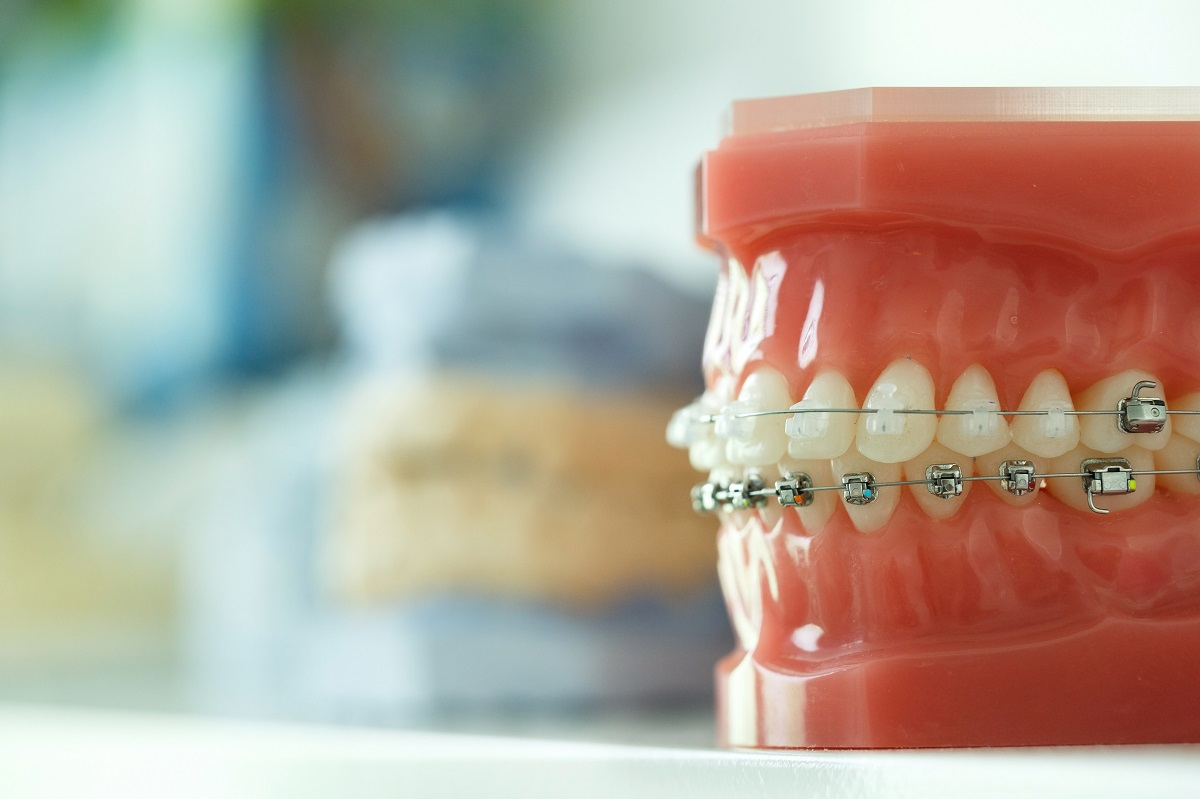 Orthodontist Mission Viejo