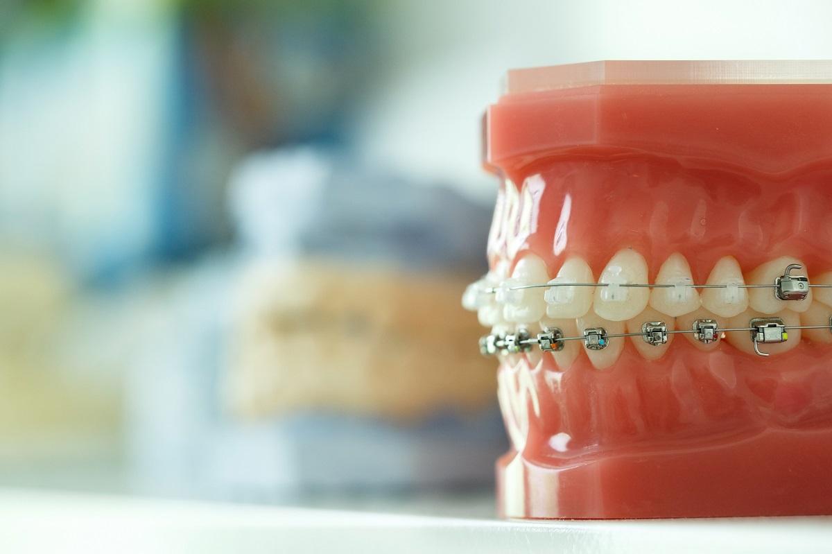 Orthodontist Mission Viejo